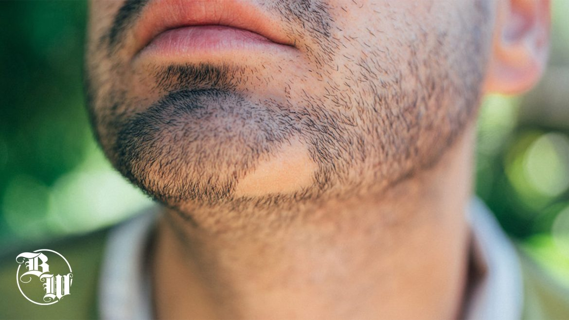 How-To-Have-The-Perfect-Beard-If-I-Have-Holes
